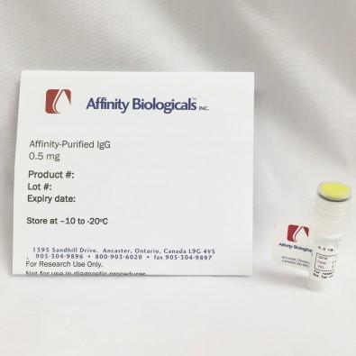 Anti-Human α2-Macroglobulin (α2M) Goat, affinity purified peroxidase conjugated IgG